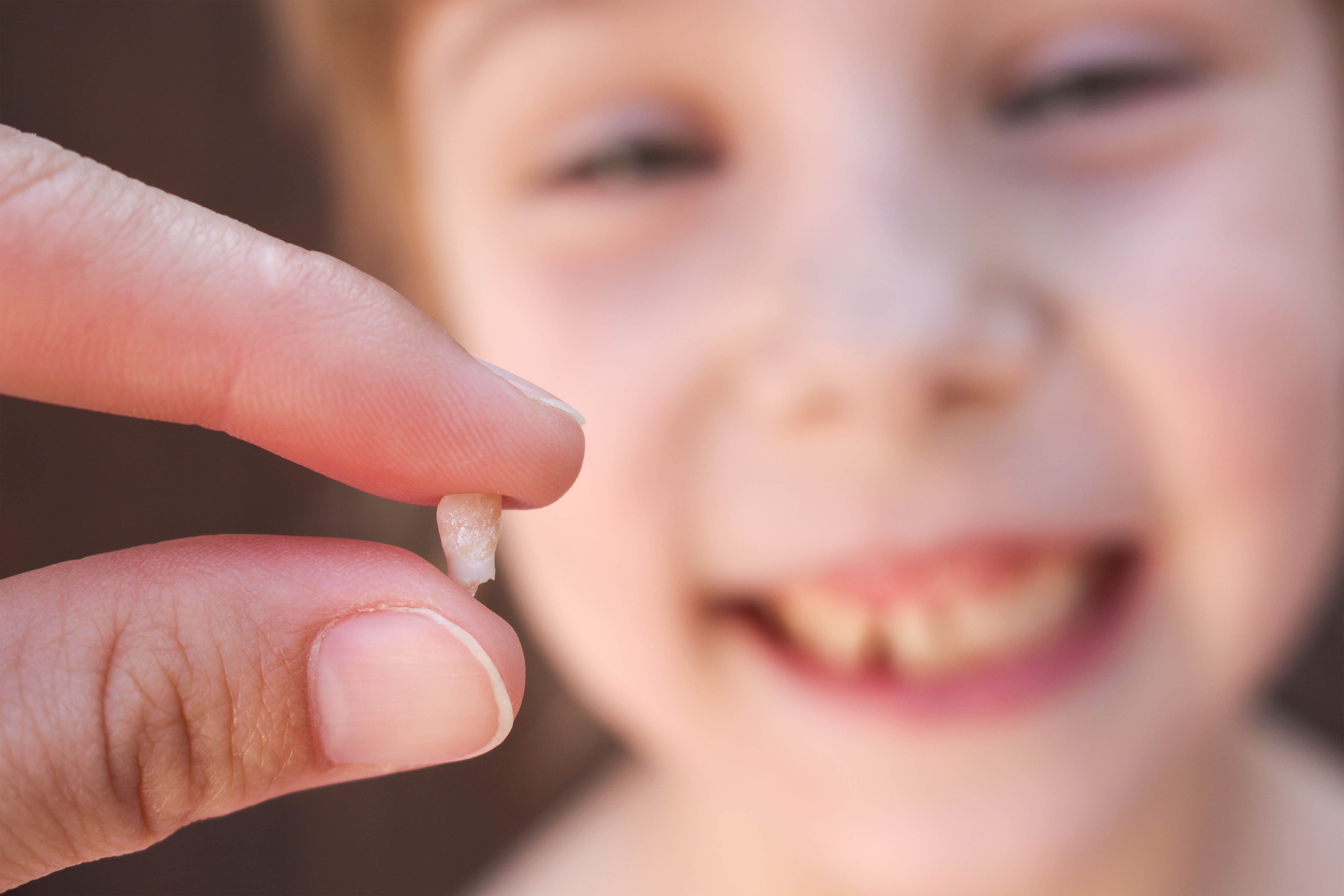 Baby Teeth Are Helping Scientists Understand Autism Mothering