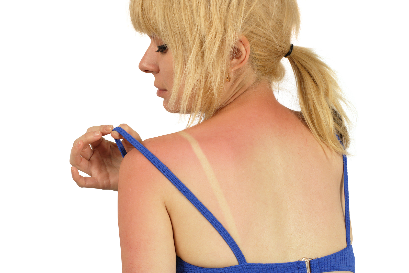 Here are 5 sunburn remedies that actually work to soothe the burn, naturally.
