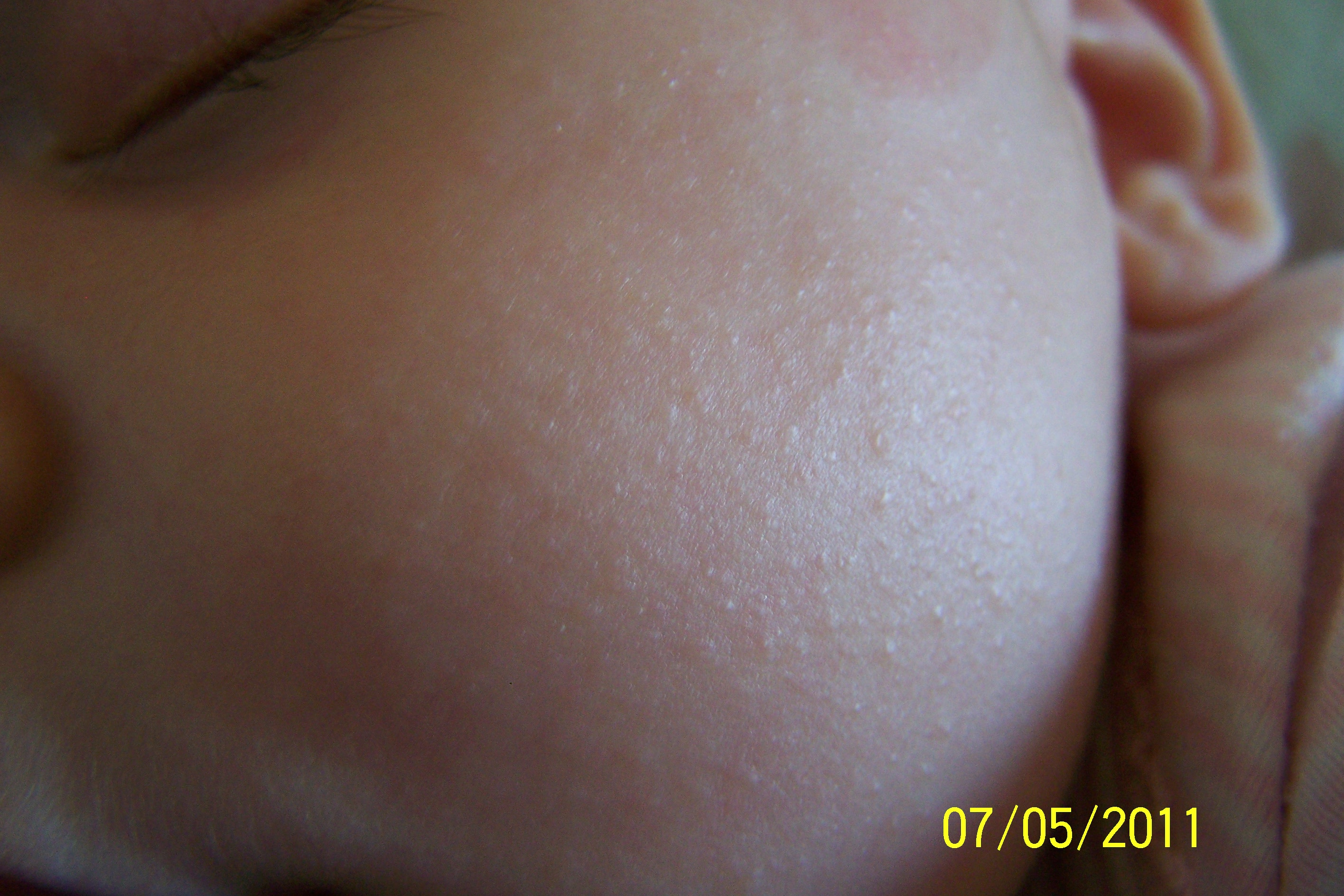 Mothering Forums > Health > Women's Health > Allergies > Tiny bumps ...